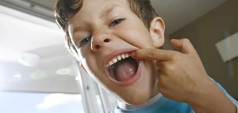 מהי עששת, מה גורם לה וכיצד להימנע | صحة الأطفال ونظافتهم اليومية