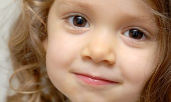 תסמונת ויליאמס: מדריך לקבלת הערכה ואבחון | متلازمة ويليامز (Williams Syndrome)