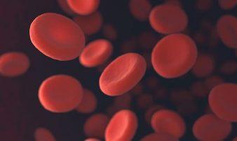 אנמיה- תסמינים, בדיקות וטיפול | فقر الدم - الأعراض، الفحوصات والعلاج
